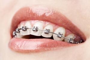 Aparato ortodoncia