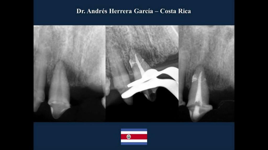 Caso 1 endodoncia
