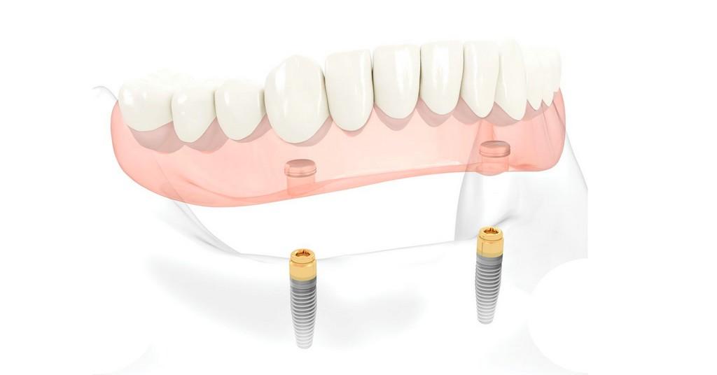 Dibujo de prótesis sobre implantes