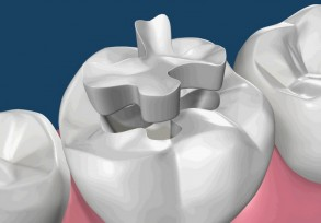 Esthetic dental restorations
