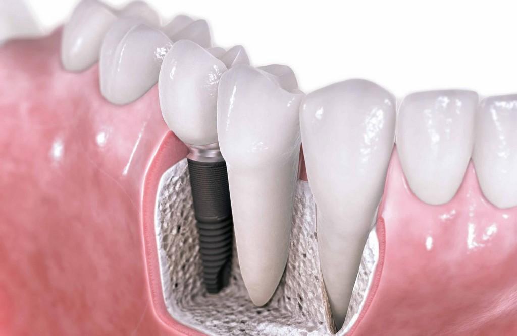 Un mplante dental