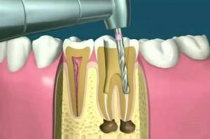 Perforación de diente