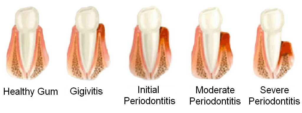 Periodontitis en inglés