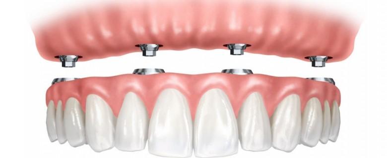 Prótesis dentales sobre implantes