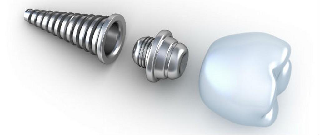 Un implante dental
