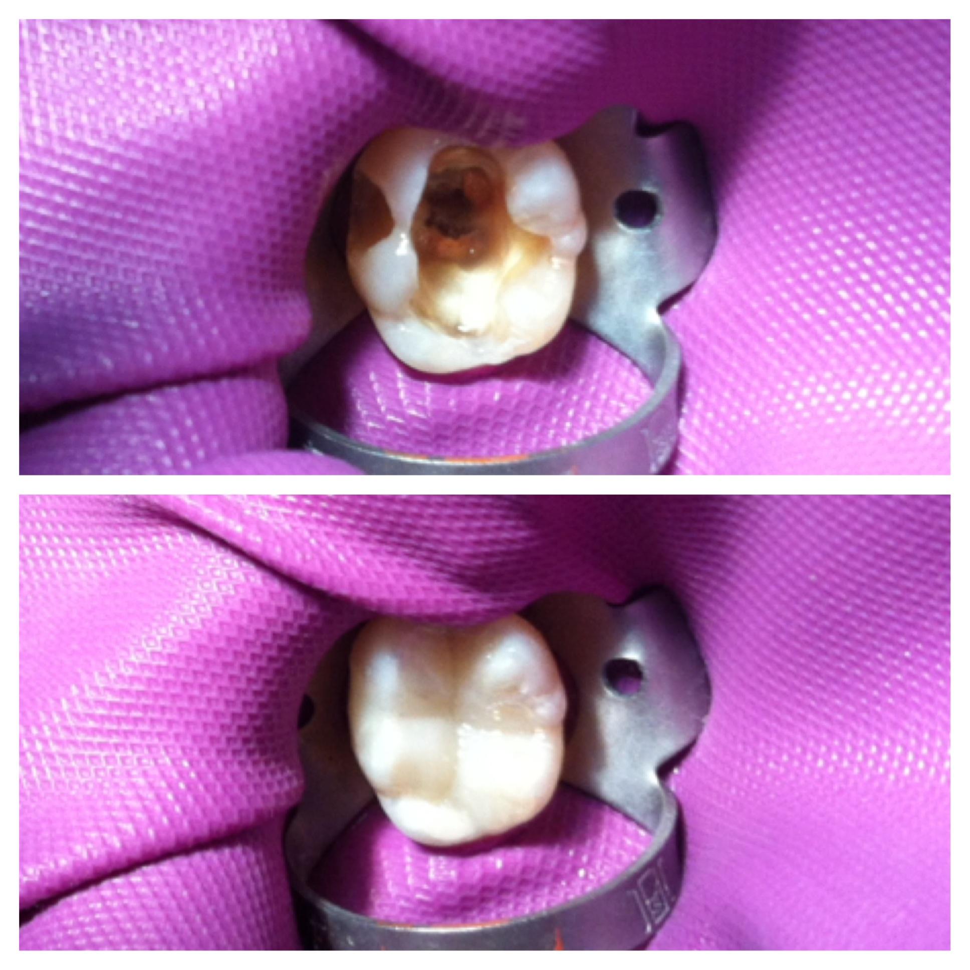 Amalgamas por resina antes y después