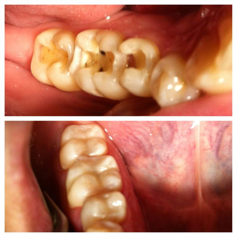 Antes y después amalgama por resina