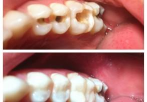 Restauraciones dentales estéticas